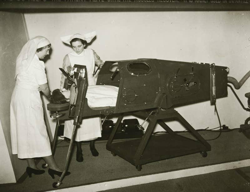 11 необычных медицинских изобретений прошлого, доказывающие, что технологии опережают настоящее